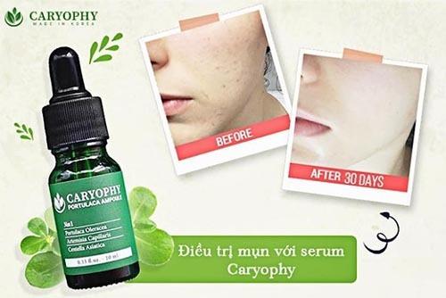 7-2-serum-tri-mun-cho-da-dau-caryophy-co-day-mun-khong